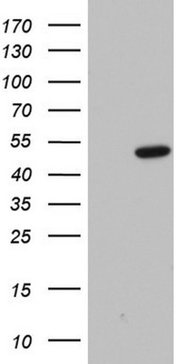 Macro H2A.2 Antibody in Western Blot (WB)