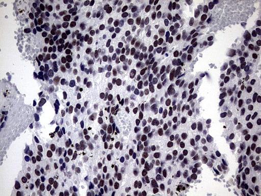 ZNF34 Antibody in Immunohistochemistry (Paraffin) (IHC (P))