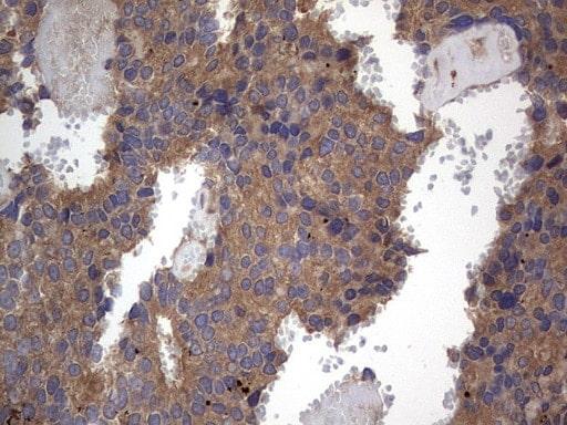 A-Raf Antibody in Immunohistochemistry (Paraffin) (IHC (P))