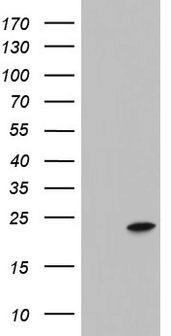 ITGB1BP1 Antibody in Western Blot (WB)