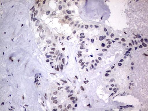 C14orf166 Antibody in Immunohistochemistry (Paraffin) (IHC (P))