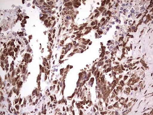 GLI1 Antibody in Immunohistochemistry (Paraffin) (IHC (P))