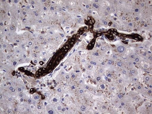 MIP-3 beta Antibody in Immunohistochemistry (Paraffin) (IHC (P))