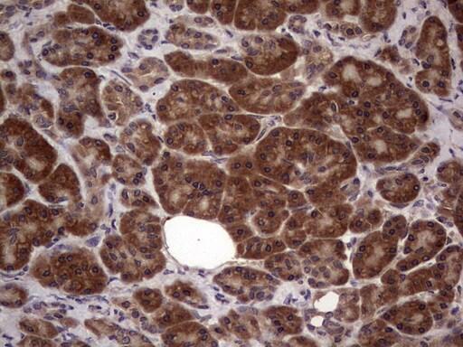 BFSP2 Antibody in Immunohistochemistry (Paraffin) (IHC (P))