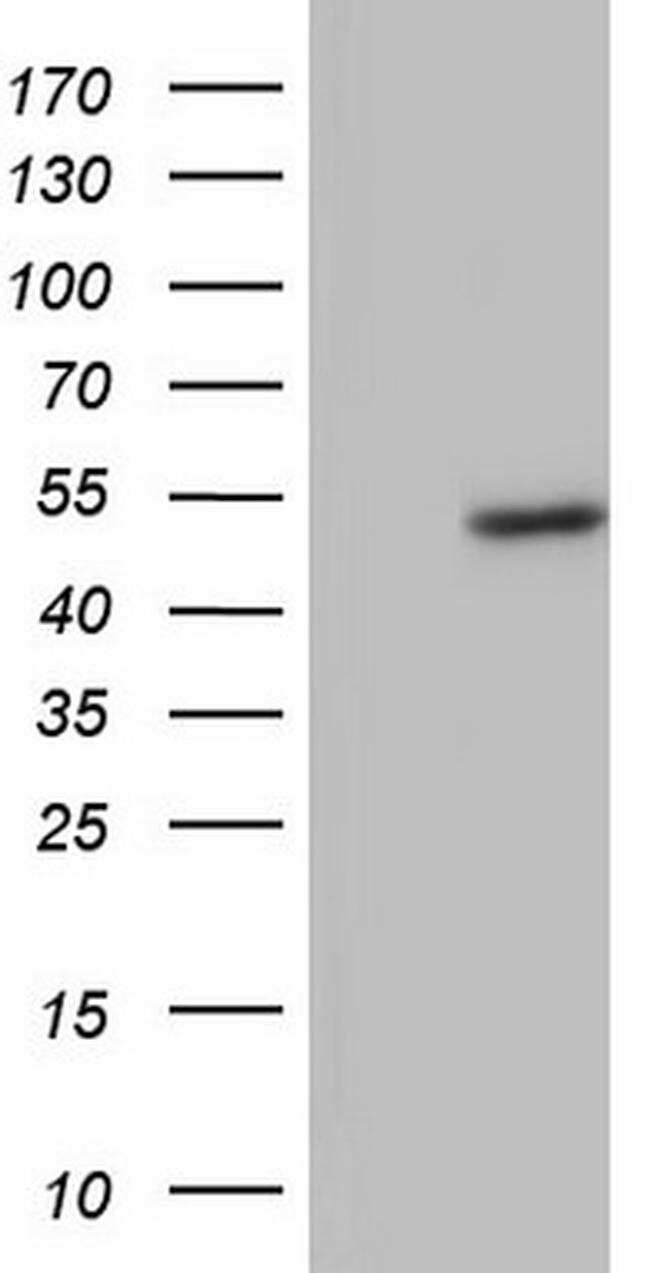 BFSP2 Antibody in Western Blot (WB)