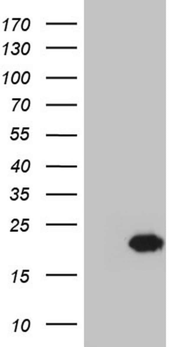 Centrin 1 Antibody in Western Blot (WB)