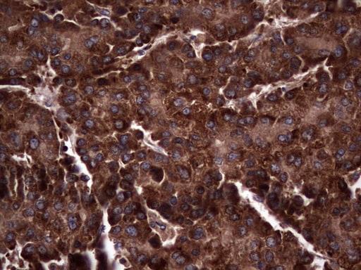 RSPO3 Antibody in Immunohistochemistry (Paraffin) (IHC (P))
