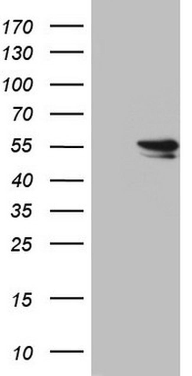RAD23B Antibody in Western Blot (WB)