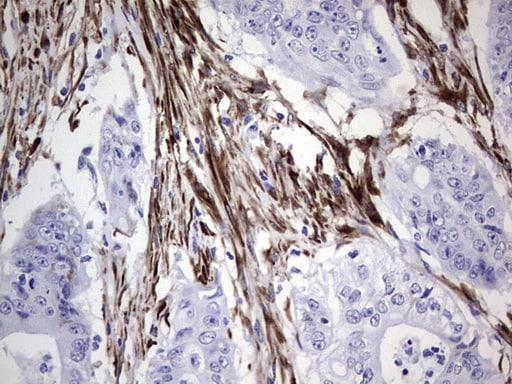 NR0B1 Antibody in Immunohistochemistry (Paraffin) (IHC (P))