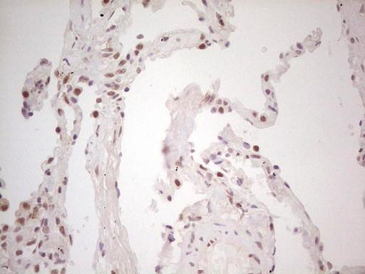 TRIB1 Antibody in Immunohistochemistry (Paraffin) (IHC (P))