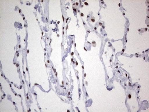 HDAC9 Antibody in Immunohistochemistry (Paraffin) (IHC (P))