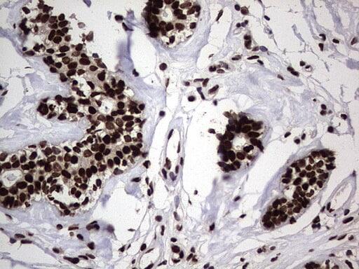 hnRNP L Antibody in Immunohistochemistry (Paraffin) (IHC (P))
