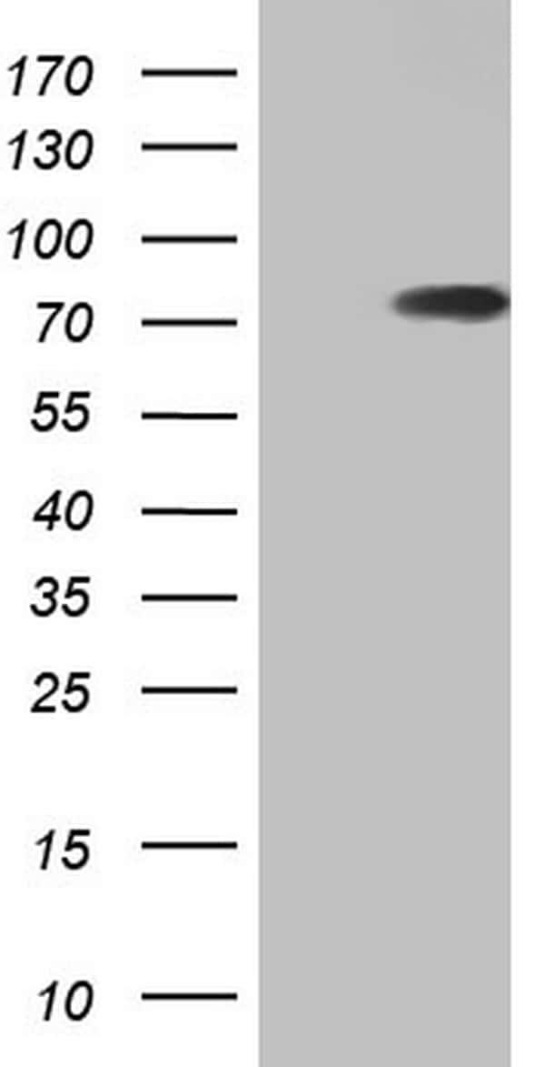 hnRNP L Antibody in Western Blot (WB)