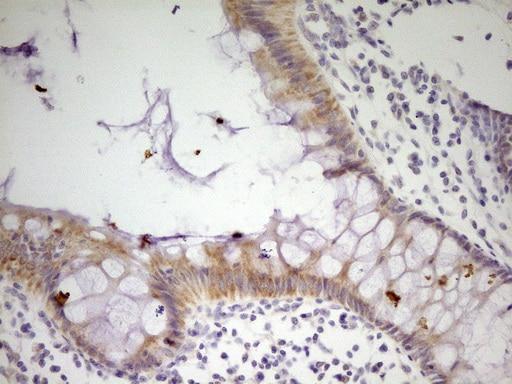 MRRF Antibody in Immunohistochemistry (Paraffin) (IHC (P))
