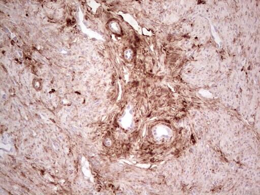 CK1 gamma-1 Antibody in Immunohistochemistry (Paraffin) (IHC (P))