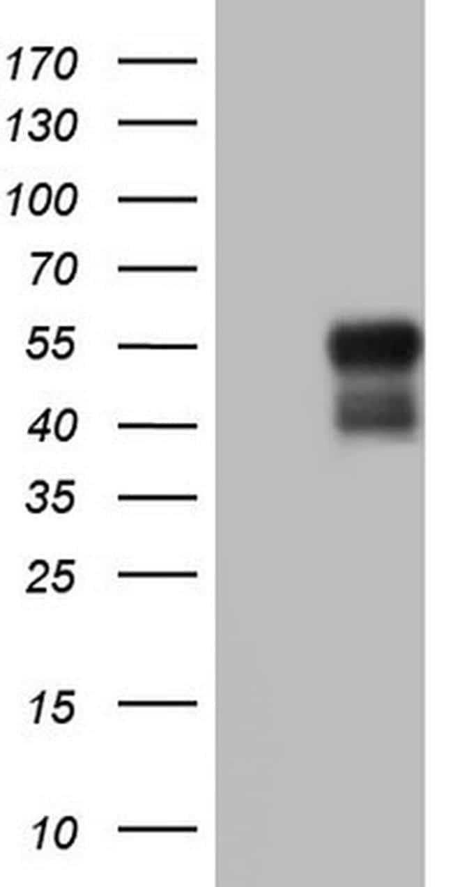 BHLH3 Antibody in Western Blot (WB)