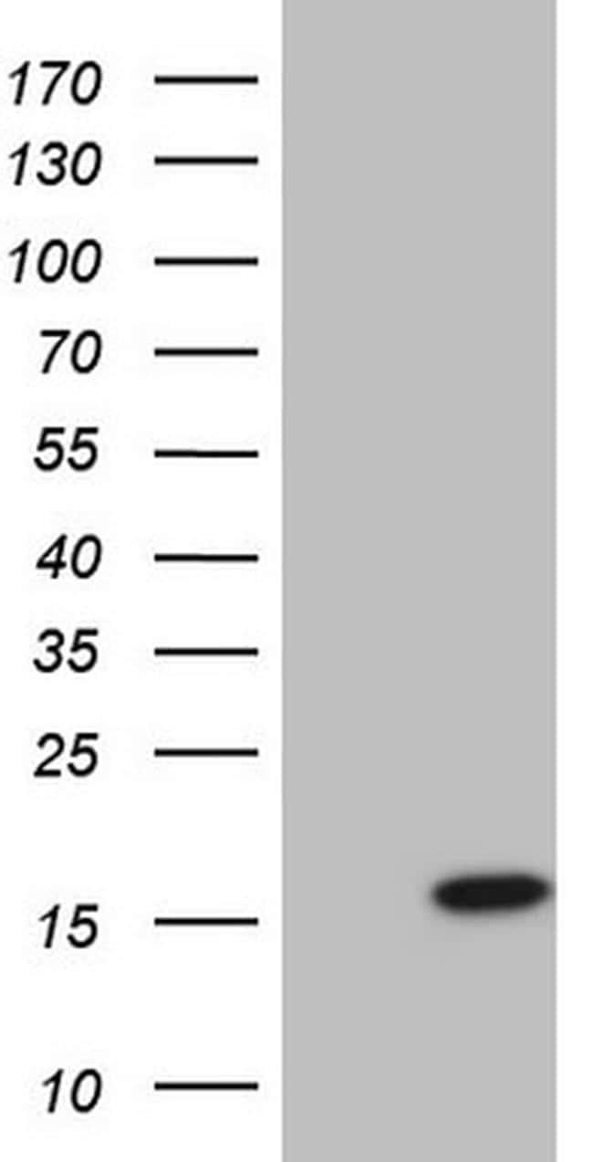 UBE2D2 Antibody in Western Blot (WB)