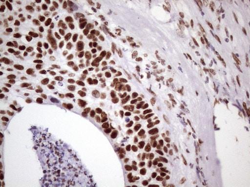 NUDT21 Antibody in Immunohistochemistry (Paraffin) (IHC (P))