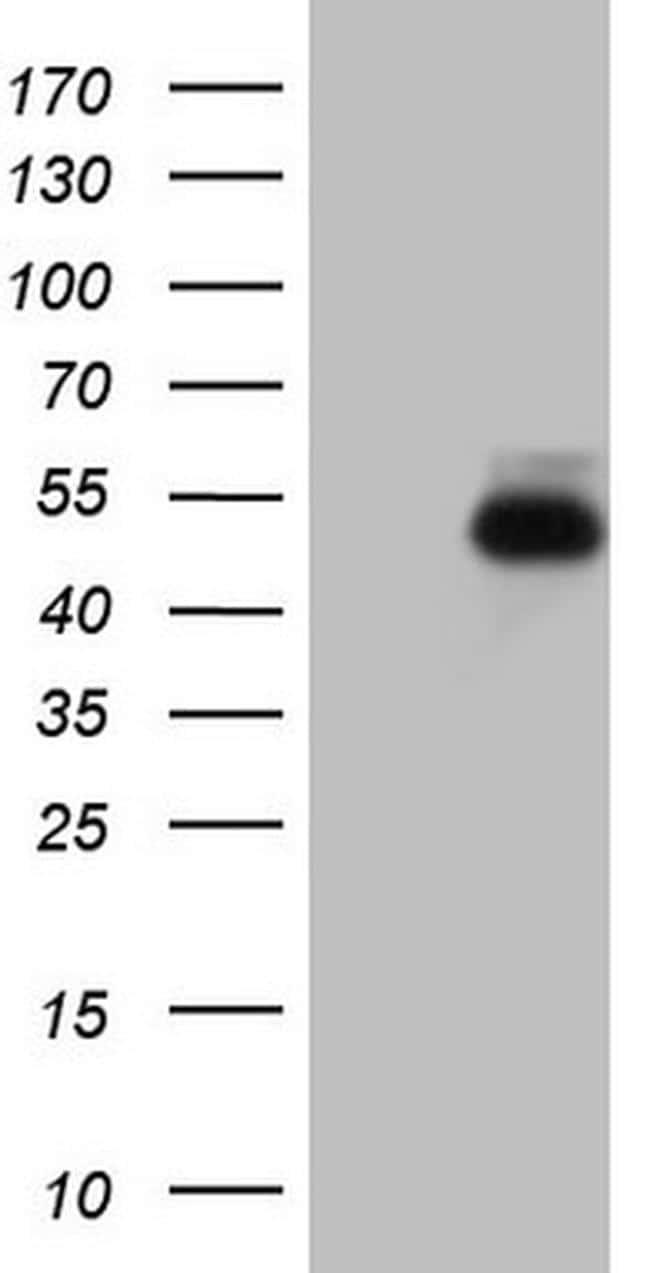RORB Antibody in Western Blot (WB)