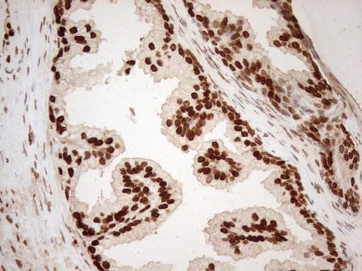 ALOX5 Antibody in Immunohistochemistry (Paraffin) (IHC (P))