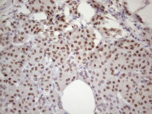 53BP1 Antibody in Immunohistochemistry (Paraffin) (IHC (P))