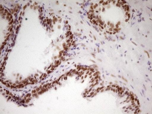 HMG20A Antibody in Immunohistochemistry (Paraffin) (IHC (P))