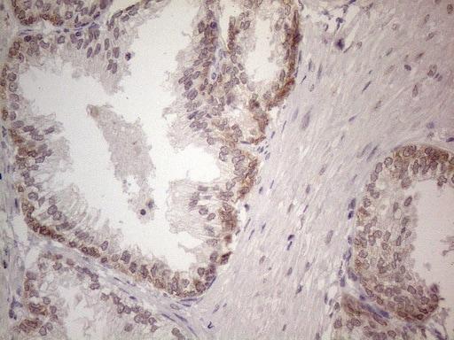 UBA52 Antibody in Immunohistochemistry (Paraffin) (IHC (P))