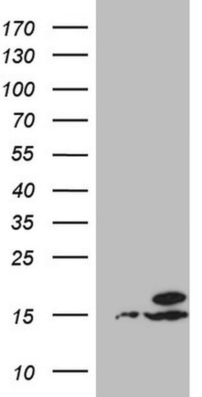 UBA52 Antibody in Western Blot (WB)