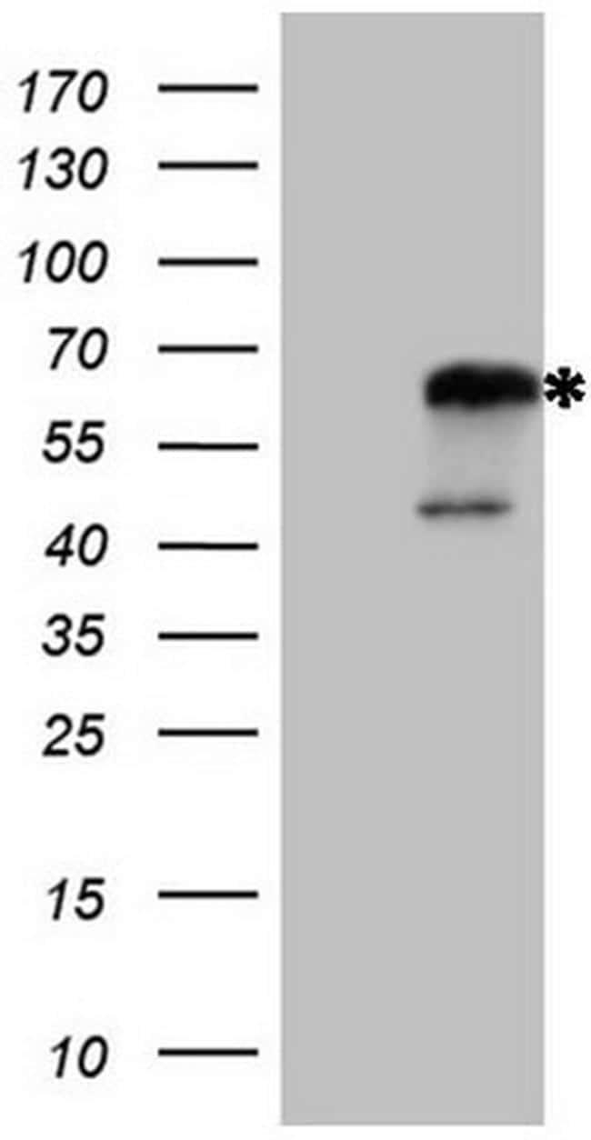 NR2C2 Antibody in Western Blot (WB)