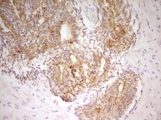 PAK4 Antibody in Immunohistochemistry (Paraffin) (IHC (P))