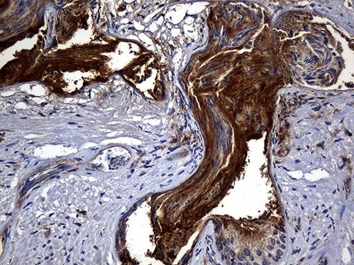 Carboxypeptidase M Antibody in Immunohistochemistry (Paraffin) (IHC (P))
