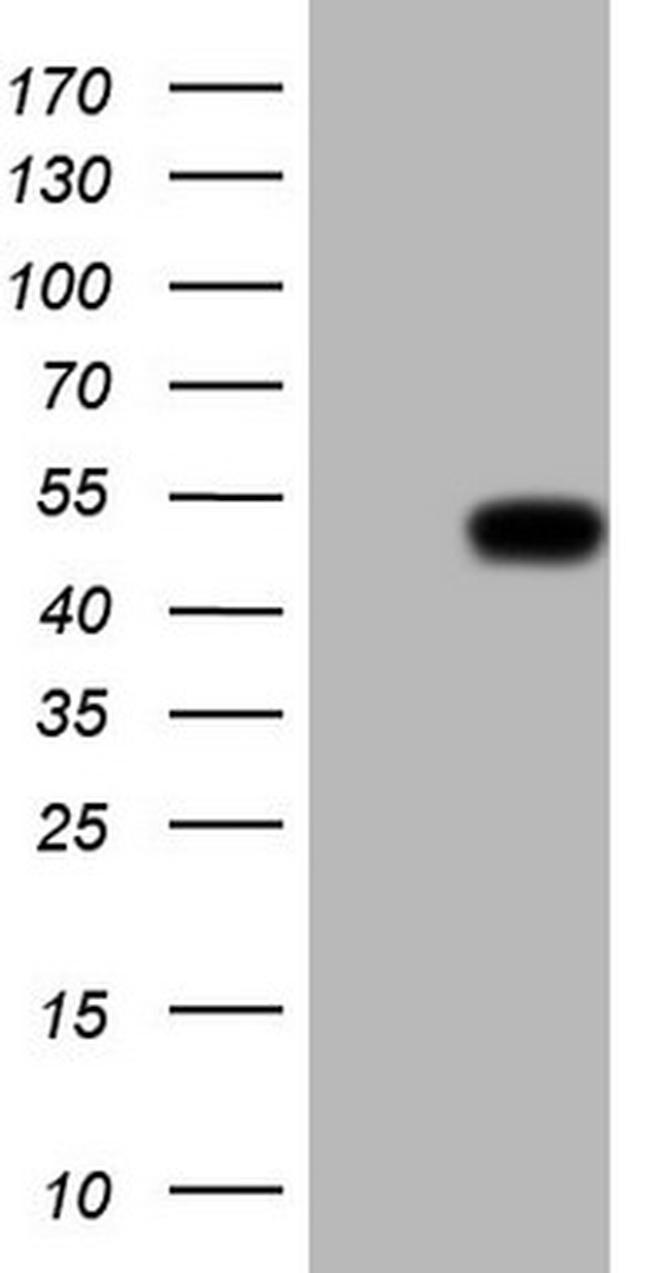 Renin Antibody in Western Blot (WB)