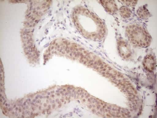 TRIB3 Antibody in Immunohistochemistry (Paraffin) (IHC (P))