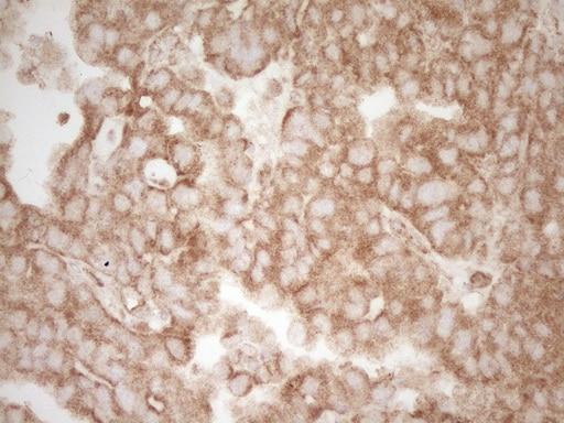 Pellino 1 Antibody in Immunohistochemistry (Paraffin) (IHC (P))