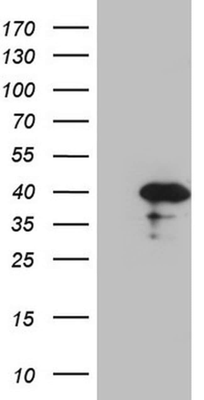 CDCA8 Antibody in Western Blot (WB)