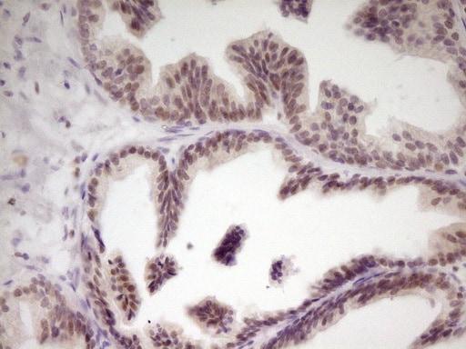 SP110 Antibody in Immunohistochemistry (Paraffin) (IHC (P))