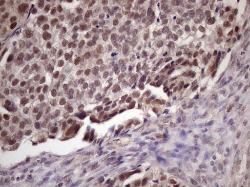 SPT3 Antibody in Immunohistochemistry (Paraffin) (IHC (P))