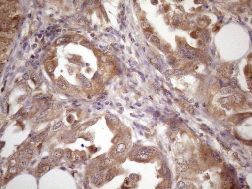 ASB2 Antibody in Immunohistochemistry (Paraffin) (IHC (P))