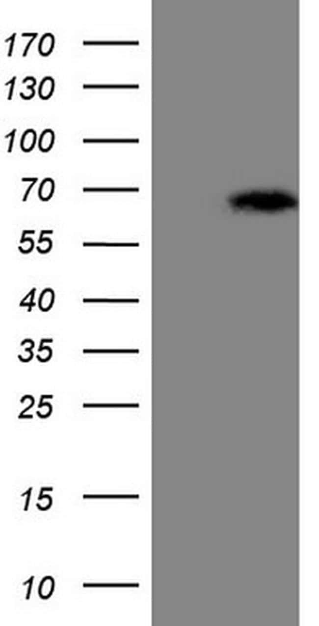 ASB2 Antibody in Western Blot (WB)