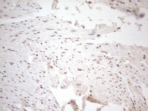 WTAP Antibody in Immunohistochemistry (Paraffin) (IHC (P))