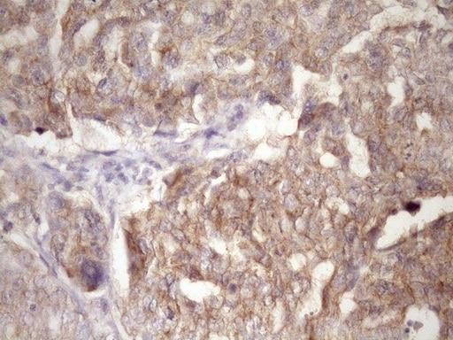 PIN4 Antibody in Immunohistochemistry (Paraffin) (IHC (P))