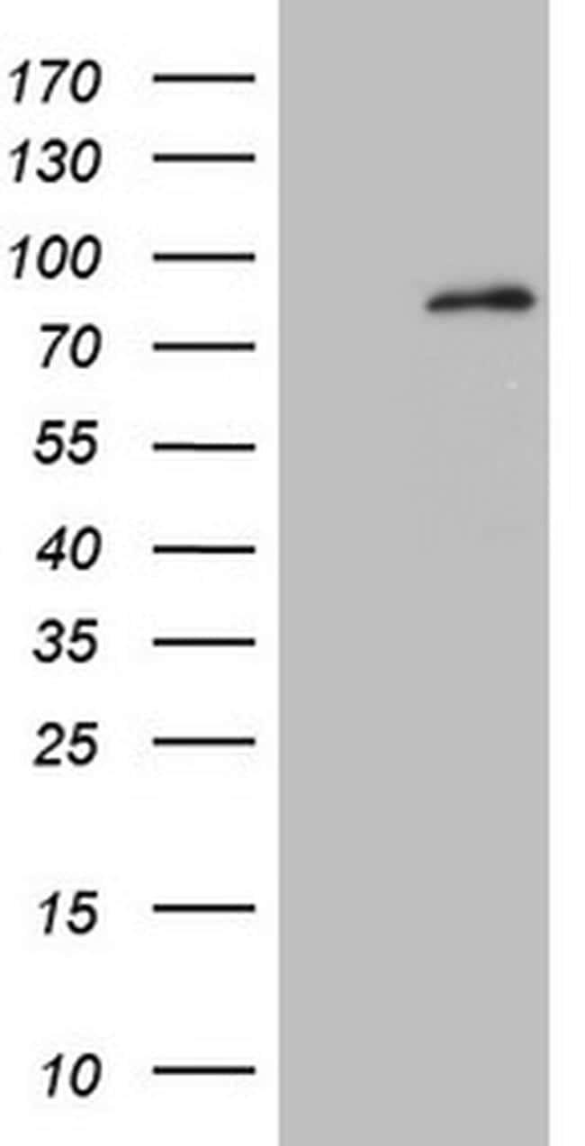 MARK4 Antibody in Western Blot (WB)