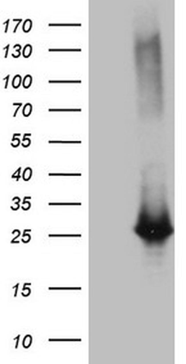 EXOSC1 Antibody in Western Blot (WB)