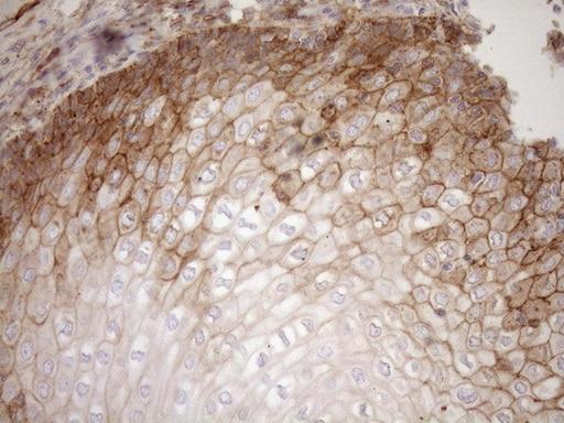 EPLIN Antibody in Immunohistochemistry (Paraffin) (IHC (P))