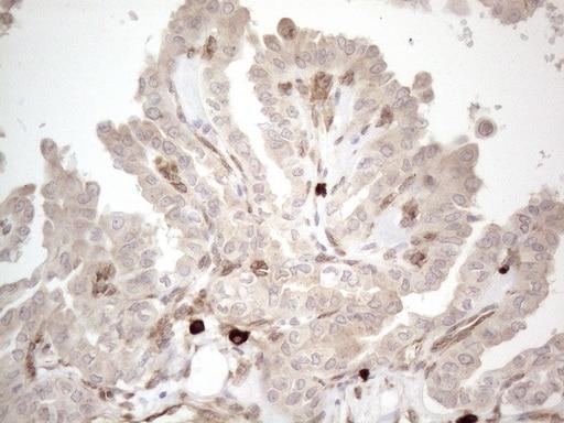 RBMS1 Antibody in Immunohistochemistry (Paraffin) (IHC (P))
