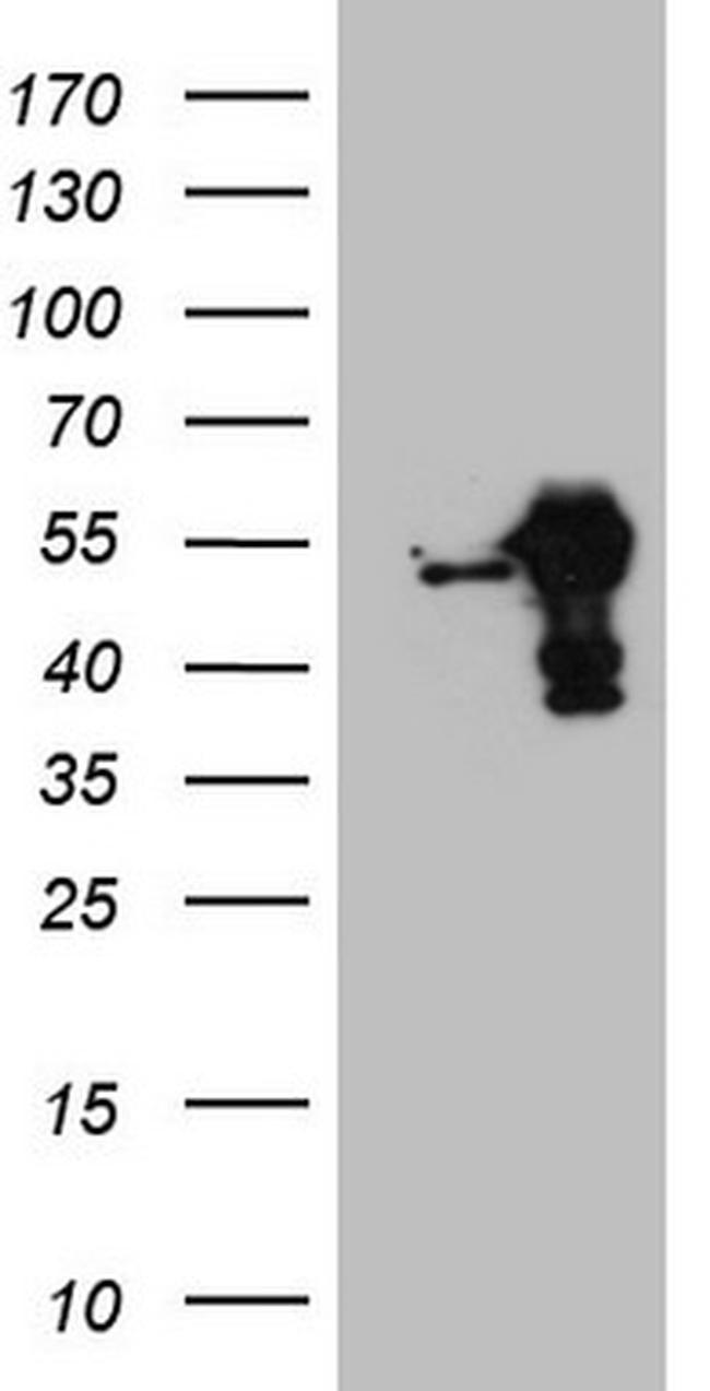 RBMS1 Antibody in Western Blot (WB)