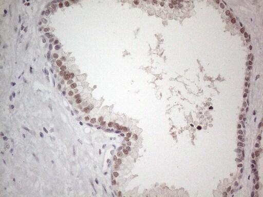 TDG Antibody in Immunohistochemistry (Paraffin) (IHC (P))