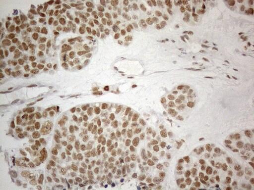 CWC27 Antibody in Immunohistochemistry (Paraffin) (IHC (P))