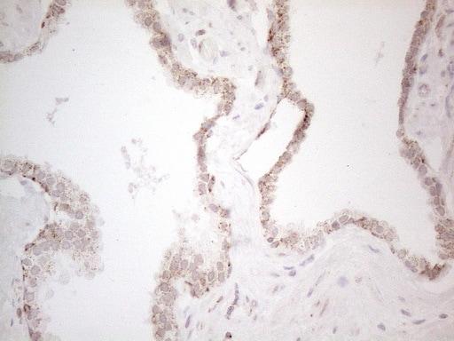betatrophin Antibody in Immunohistochemistry (Paraffin) (IHC (P))
