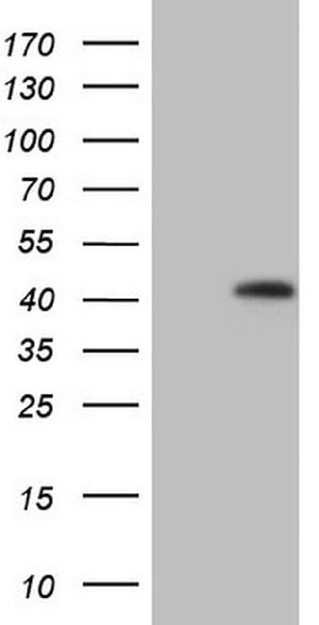 KCTD13 Antibody in Western Blot (WB)